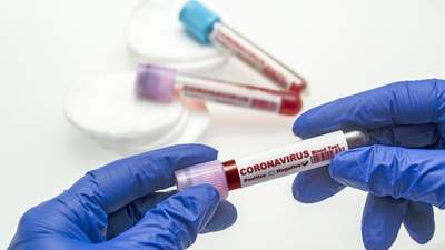 1 433 нових інфікованих: кількість хворих в Україні наблизилась до 85 тисяч