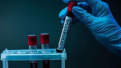 В Україні виявили 2 966 випадків коронавірусу за добу