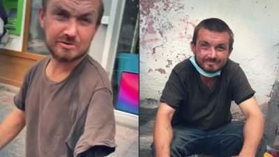 """Магічне зцілення: у львівського жебрака знову """"виросла"""" рука – кумедне відео"""