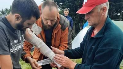В Карпатах молния попала в группу туристов: есть пострадавшие – фото