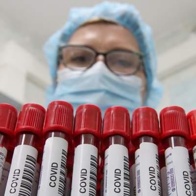 В Україні виявили 468 нових випадків коронавірусу: актуальні дані