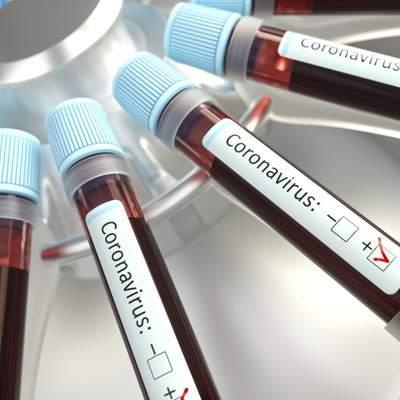 В Украине выявили  24 823 случая заражения коронавирусом