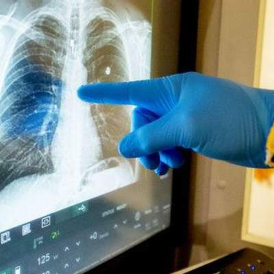 Нужно ли делать КТ легких при подозрении на коронавирус, – объяснение Супрун