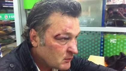 У Криму викрали і побили телеведучого Геннадія Балашов (Фото)
