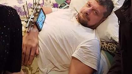 Медики рассказали о состоянии здоровья раненого Мосийчука