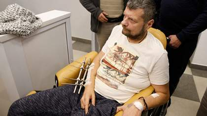 Мосійчукові зробили операцію: витягли кулю з ноги