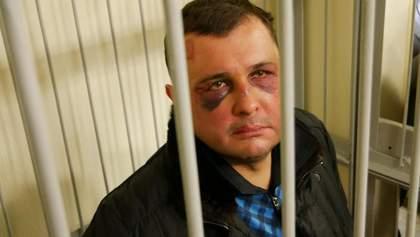 """Матиос рассказал о """"загадочных обстоятельствах"""" и травмах Шепелева при задержании"""