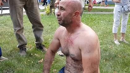 Самоспалення у Криму: стало відомо про стан активіста