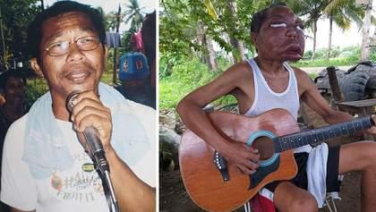 Через невідому хворобу обличчя чоловіка збільшилось у три рази: моторошні фото