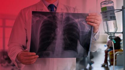 Туберкульоз в Україні: що зміниться в системі лікування і чи є причини для паніки