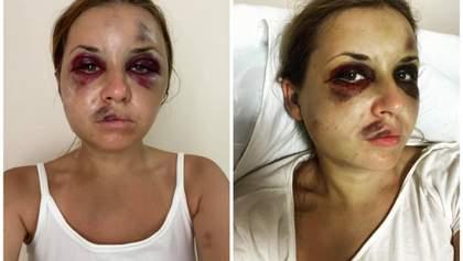Думаете, что хотела бы лежать здесь: жертва нападения в поезде Луговая ответила недоброжелателям