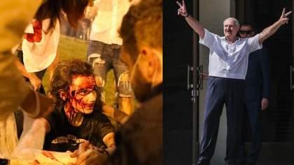 """Лукашенко каже, що фото побитих протестувальників – """"постановочні кадри"""""""