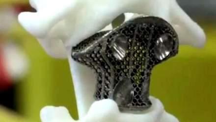 Здорове життя. Китайці першими імплантували хребець, роздрукований на 3D-принтері