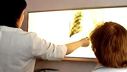 Чи відрізняється офіційне та реальне число хворих на туберкульоз