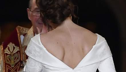 Принцеса Євгенія у весільній сукні показала великий шрам: фото