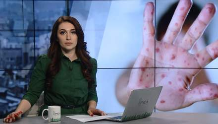 Випуск новин за 15:00: Кір в Україні. Псевдовибори бойовиків
