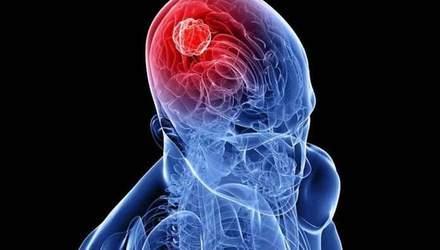 Які симптоми раку мозку на ранніх стадіях