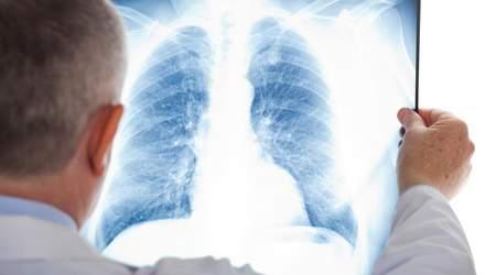 З 2019 року хворі на туберкульоз лікуватимуться вдома