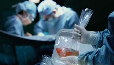С 1 января в Украине приостановят все виды трансплантации органов