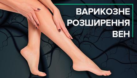 Варикоз: симптоми, профілактика і лікування