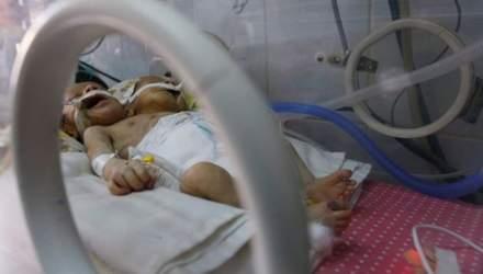 В Ємені народилися унікальні сіамські близнюки