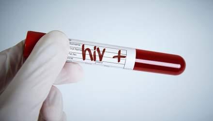 В Украине становится меньше ВИЧ-инфицированной молодежи