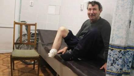 Не мог оплатить себе лечение: на Сумщине мужчина сам себе отрезал ступню из-за гангрены