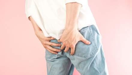 Як вилікувати геморой: поради лікаря