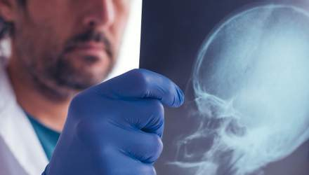 Даже один удар по голове может привести к необратимым болезням