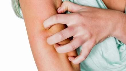 Алергія на шкірі: чому виникає, як виглядає та чим лікувати