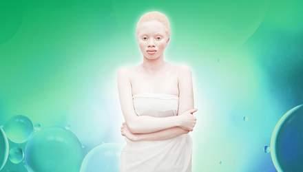 Що таке альбінізм та як живуть люди з цією особливістю