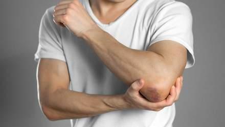 Ушибы, растяжение или разрыв мышц: как лечить