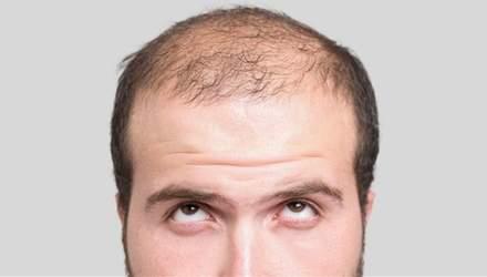 Знайшли новий метод відновлення волосся: молекула, яка зупинить облисіння