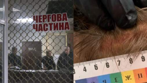 Избили железным стулом и огнетушителем: жуткая расправа полиции над мужчиной на Черкащине