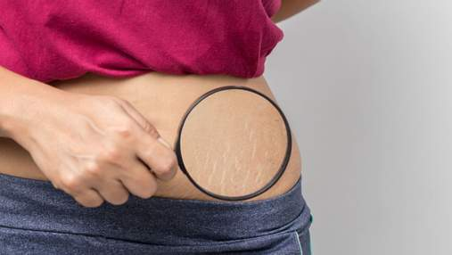 Розтяжки на тілі: чому вони з'являються та як з ними боротися