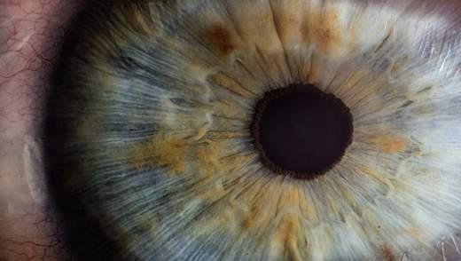 В Италии возбудитель коронавируса обнаружили в глазах больной пациентки