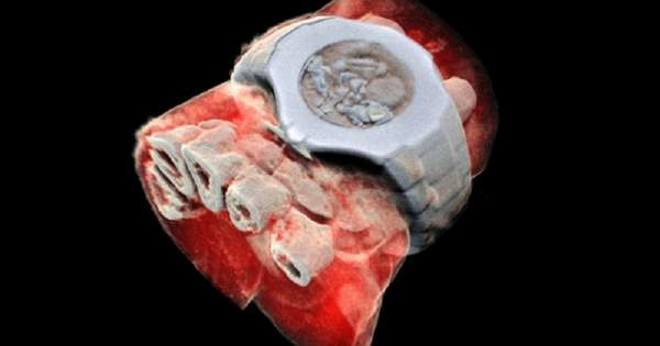 На людині вперше випробували кольоровий рентген: знімки