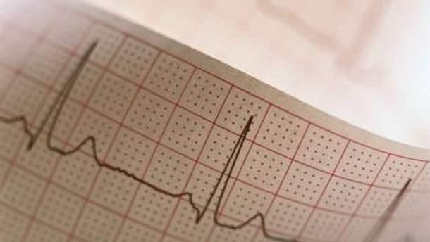 Проблеми з серцем виникають як і у старших, так і у молодших