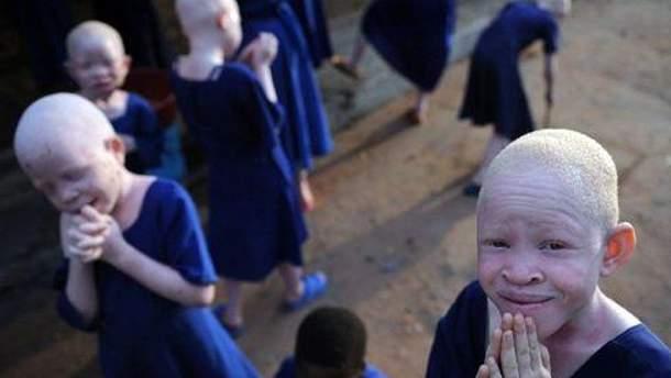 У Танзанії альбіносів вважають проклятими