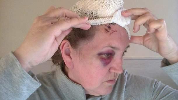 Ірина Остащенко після нападу навесні