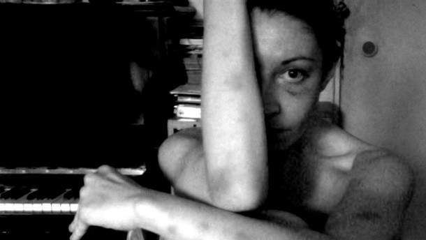 Тело девушки покрыто синяками