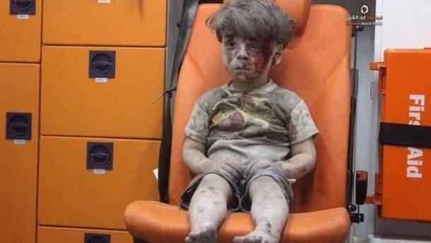 Фото с 5-летним Омраном поразило мир