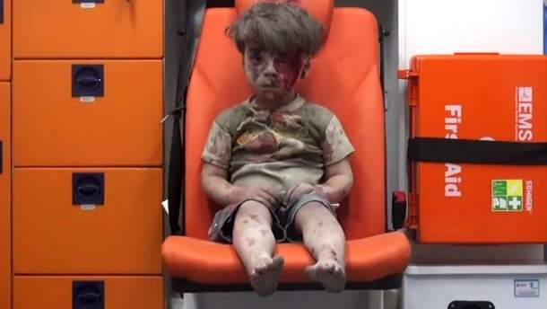 Омран Дакніш вижив після бомбардування, але його брат загинув