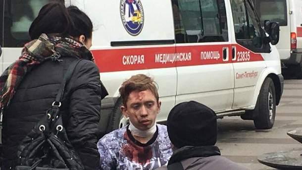 Серед постраждалих у Петербурзі є діти