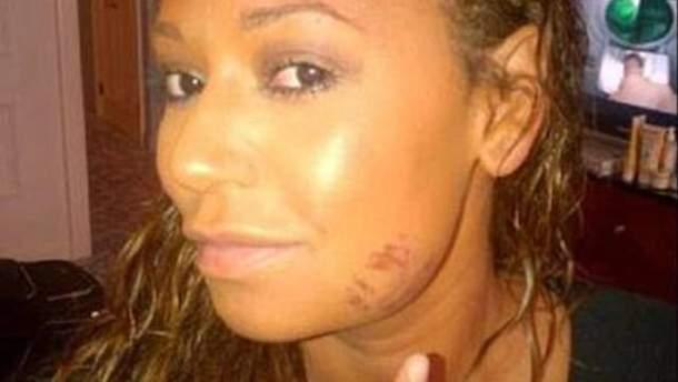 Браун показала побите обличчя