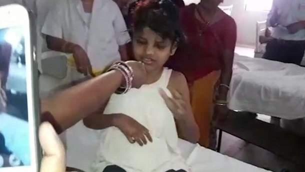 Девочка-маугли из Индии