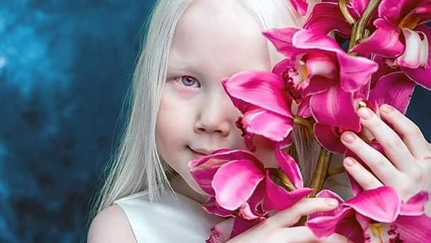 Дівчинка-альбінос вразила своєю красою