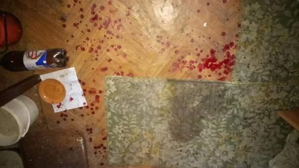 В результате взрыва мужчина остался без пальцев