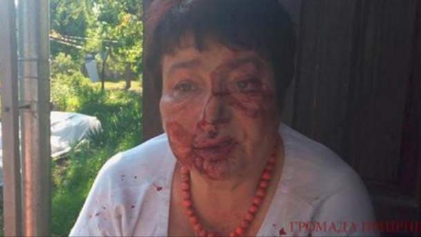 У Коцюбинському побили Людмилу Тимченко