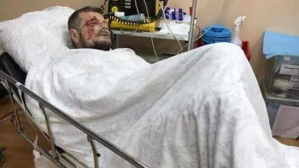 Игорь Мосийчук после покушения в больнице